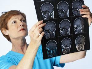 Исход лечения менингита зависит от своевременного диагностирования