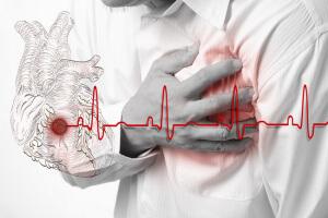 Острая боль может возникнуть при инфаркте