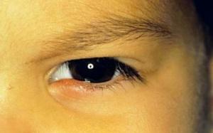 Вирус герпеса на глазу чаще всего возникает у детей