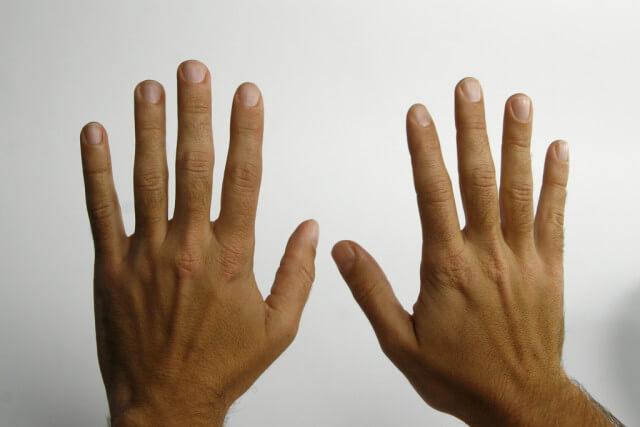 Болят фаланги пальцев рук: причина и лечение патологического состояния