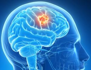 Инсульт с кровоизлиянием в мозг: последствия и причины болезни