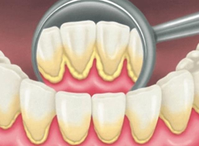 Как лечить зубной камень в домашних условиях: эффективные способы
