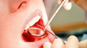 При появлении зубного камня поспешите к стоматологу