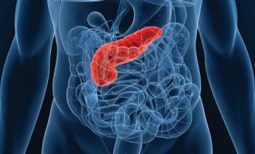 Симптомы онкологии поджелудочной железы: признаки и факторы развития рака