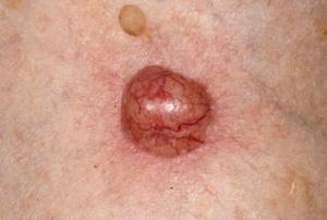 Базально-клеточный рак в основном поражает кожные покровы