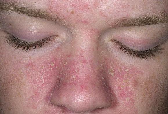 Чем лечить себорейный дерматит на лице: основные рекомендации