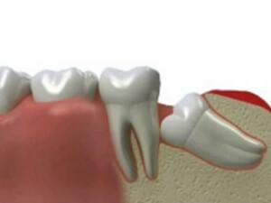 Ретинированным зуб является при патологии прорезывания