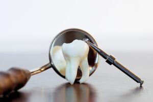 Основной метод лечения - удаление ретинированного зуба