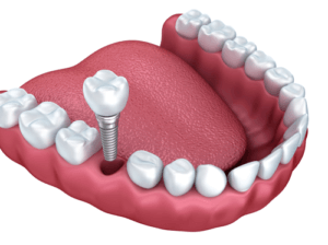Установка мини-имплантов - эффективный способ протезирования