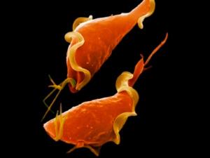Болезнь вызывают микробы трихомонады