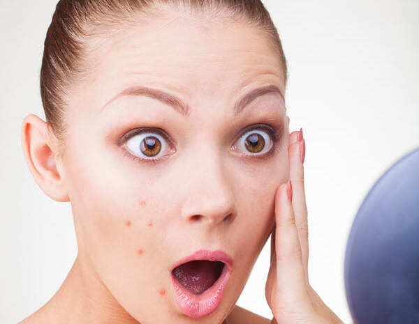 Аллергический дерматит на лице: лечение и специальная диета