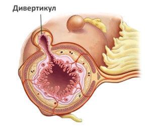 Девиртикулярная болезнь - это патоогия сигмовидной кишки