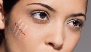 Мазь для рассасывания шрамов: эффективные средства для решения проблемы
