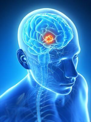 Невринома головного мозга: особенности патологии
