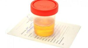 Хлопья в моче при беременности: причины появления осадка