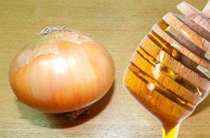 Лук с медом, как эффективное средство от насморка