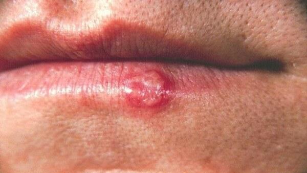 Рак губы: первые признаки опасного недуга
