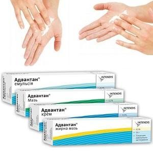 Мазь Адвантан - эффективный препарат для лечения кожных болезней