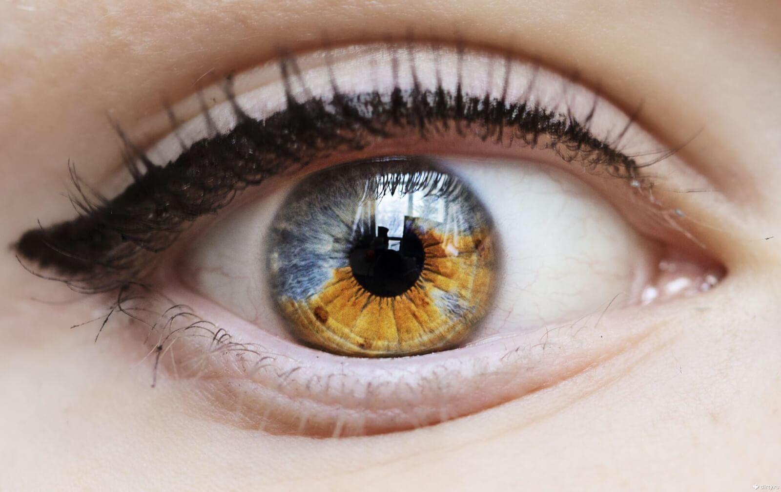 Глиома зрительного нерва: что это и, как с болезнью бороться