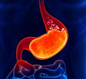 Как узнать кислотность желудка: доступные способы определения