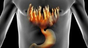 Изжога - сигнал о наличии патологии