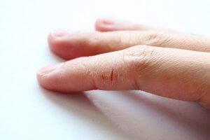 Ваши руки требуют заботы и внимания!