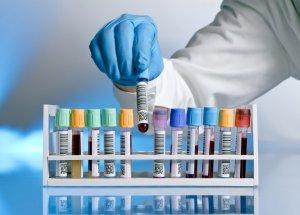 Мономерный пролактин - женский половой гормон