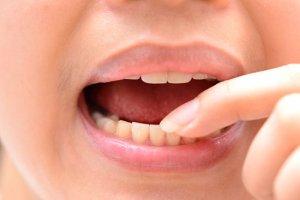 Как лечить пародонтит: эффективные способы терапии