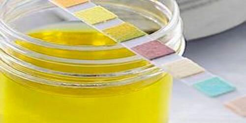 Почему моча ярко-желтая: основные причины патологии