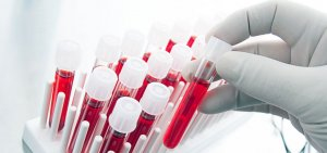 Повышен уровень лейкоцитов при сдаче анализа крови