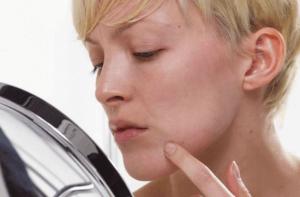 Гиперкератоз - патологическое состояние кожных покровов