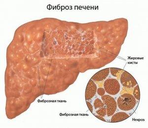 Фиброз печени - достаточно серьезная патология