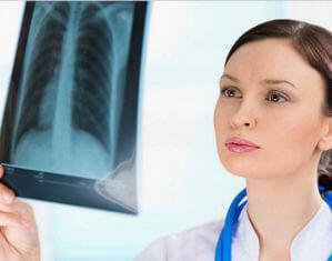 Фиброз корней легких - серьезная патология органов дыхания