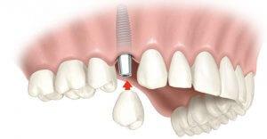 Установка зубных имплантов возвращает красивую улыбку