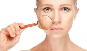 Причины развития сосудистых звездочек на лице