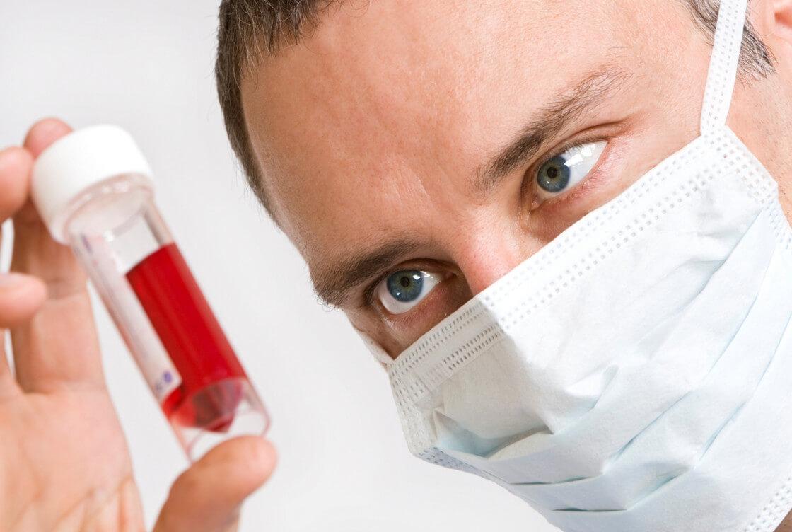Признаки ВИЧ-инфекции у женщин: диагностика на ранних стадиях