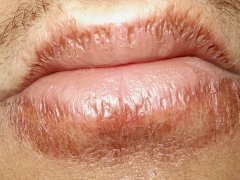 Хейлит на губах: лечение, профилактика и смена привычек