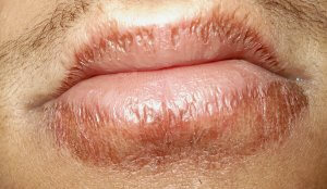 Виды воспалительных проявлений на губах