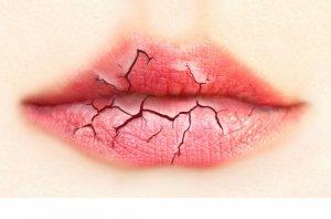 Недостаток витаминов приводит к хейлиту