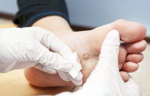 Препараты для лечения подошвенных бородавок: народные и лекарственные