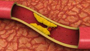 Необходимость холестерина для организма