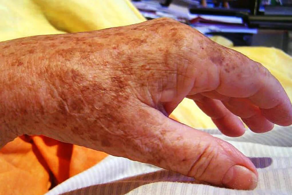 Коричневые пятна на руках и как от них избавиться