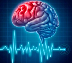 Обследования больных с проблемами сосудов головного мозга