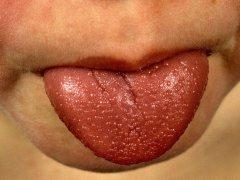 Признаки скарлатины у взрослых: прогноз, осложнения и профилактика