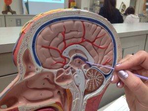Киста гипофиза головного мозга, клиническая картина, причины и диагностика