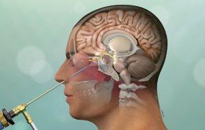 Показания для срочной операции на мозге