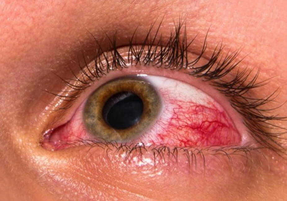 Противопоказания при глаукоме, рекомендации врачей