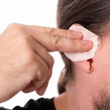 Причины крови из уха, в чем опасность и как лечить
