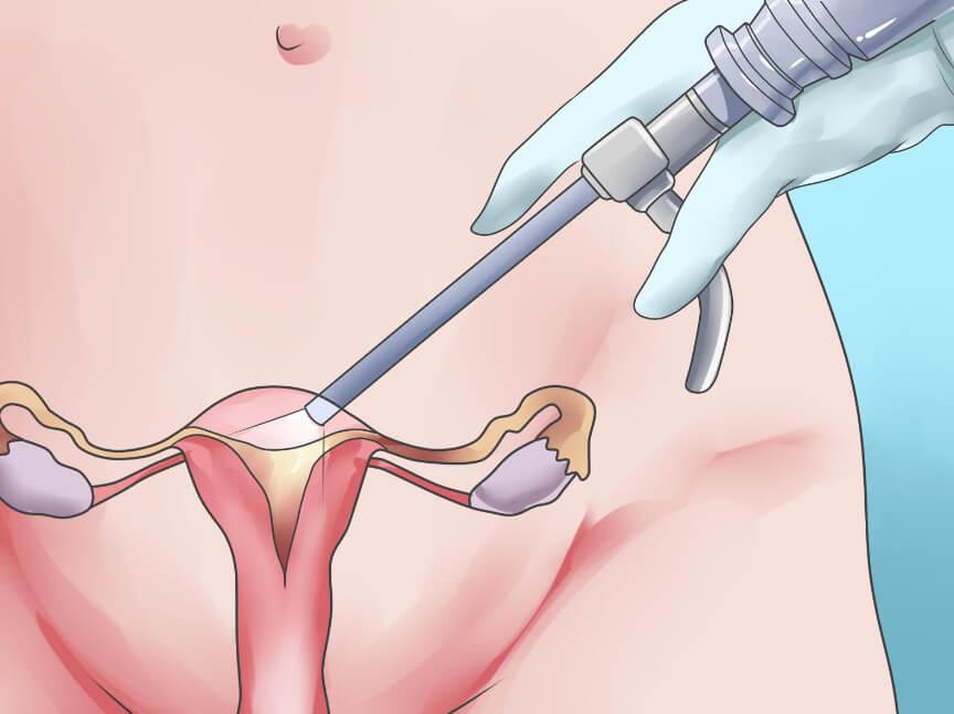 Удаление матки и яичников: последствия процедуры, плюсы и минусы операции
