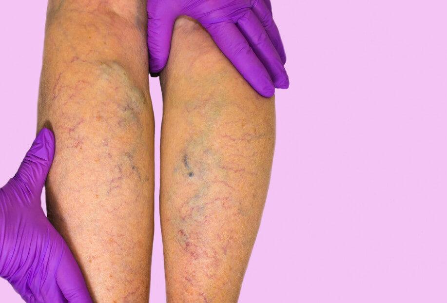 Флеботромбоз глубоких вен нижних конечностей: причины, симптомы и методы лечения заболевания